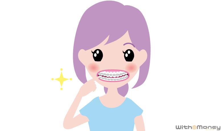 歯列矯正器具をつけた女性