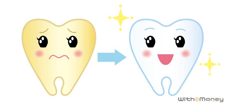 黄ばんだ歯をホワイトニングで白くした様子